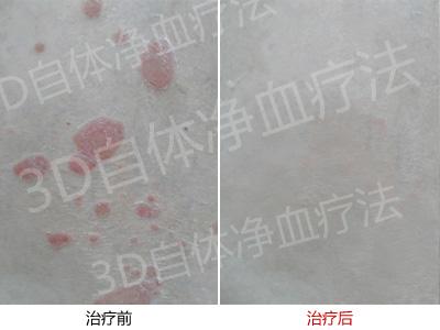 感谢郑州市银屑病研究所 我的牛皮癣治好了