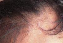 如何护理头部银消病