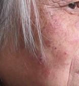 中老年牛皮癣治疗应注意哪些事项