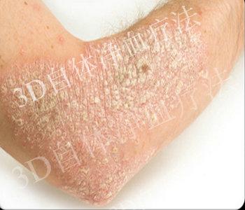 银屑病晚期时症状是什么