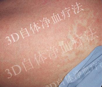 早期银屑病症状怎么诊断