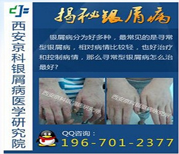 河南专科治疗银屑病医院